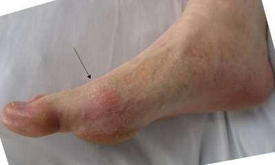 Болят суставы пальцев на ногах: причины и лечение