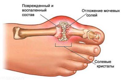 Боль в суставе на стопе боли суставах рук и ног лечение народное