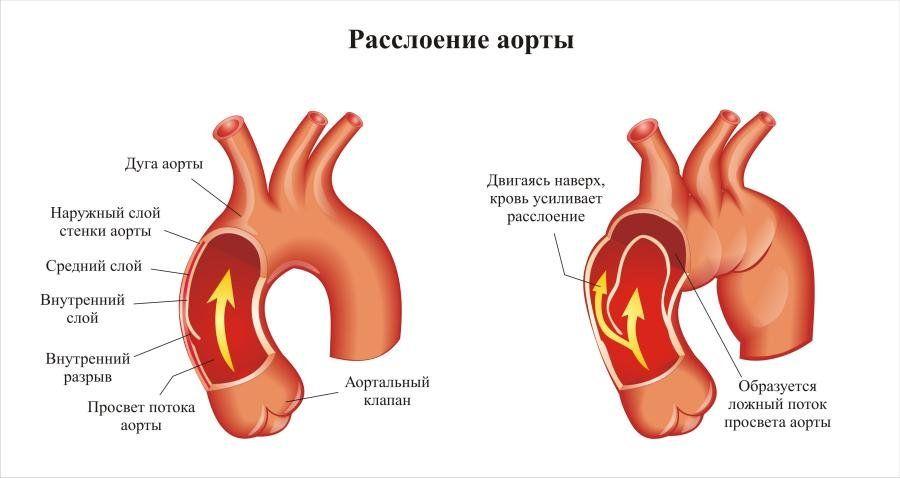Почему болит спина и грудная клетка. Что делать, если болит спина и грудная клетка, трудно дышать и как лечить