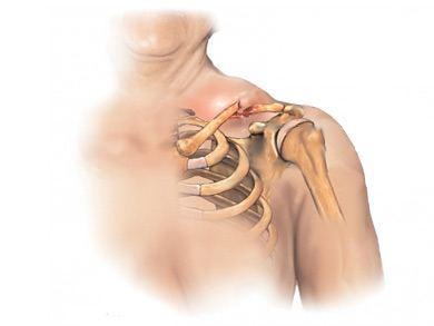 Лечебная физ при остеохондрозе
