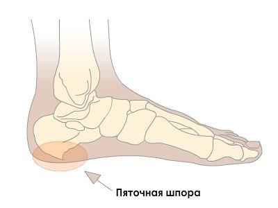 От чего болит нога выше стопы thumbnail