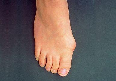 Что такое артрит на пальцах ног