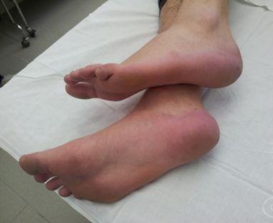 Что делать если болит нога свод
