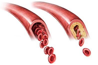 Тяжесть в икроножных мышцах причины и лечение