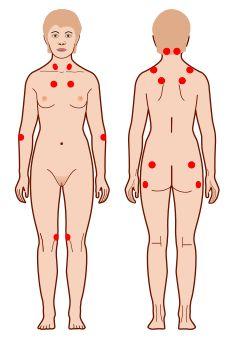Головная боль в области затылка какое давление и пульс являются виновниками дискомфортных ощущений