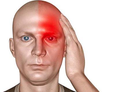 Сильно болит голова если слабость