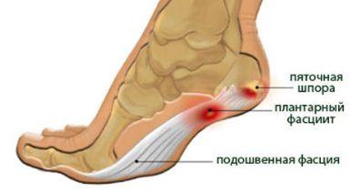 Почему болят ноги ниже колен по утрам thumbnail