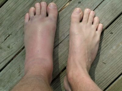 Болит стопа ноги сбоку что делать