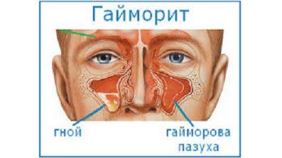 Болит позвоночник в области поясницы и температура