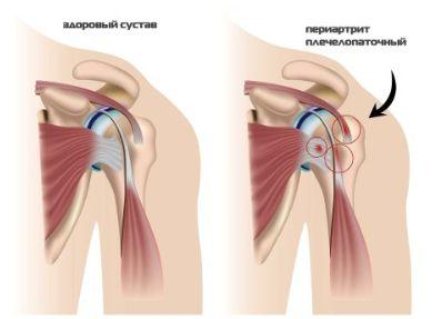 Изображение - Боли и хруст в плечевом суставе лечение Snimok-ekrana-2017-03-28-v-23.42.59