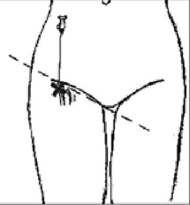 Блокада седалищного нерва литотомическим методом