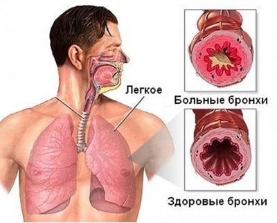 Внезапная острая боль в области желудка