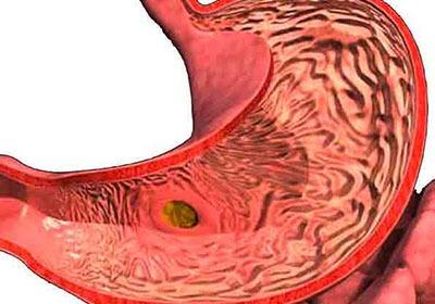Болит живот кружится голова температура и тошнит thumbnail