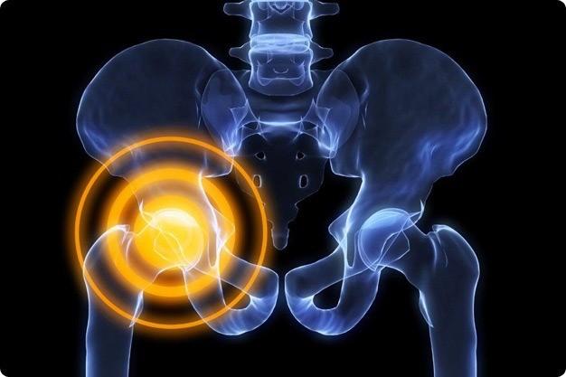 Что делать и как лечить боль в тазобедренном суставе