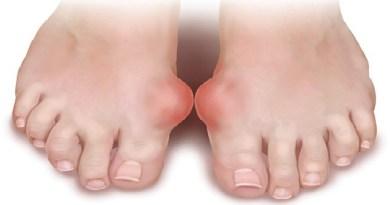 Изображение - Суставы правой стопы trieu-chung-benh-gout