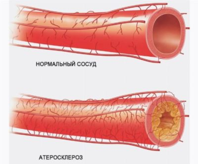 Что болит при шейном остеохондрозе как и чем лечить