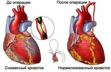 Боли в области сердца и левой лопатки