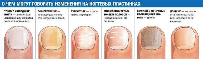 Почему болят края большого пальца на ноге thumbnail