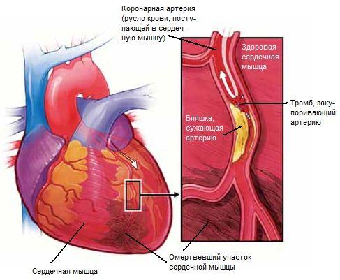 Изображение - Давление в верхней части грудной клетки Infarkt_miokarda_1