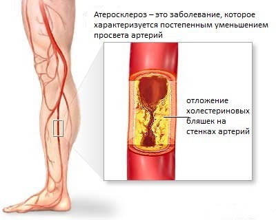 Санатории специализирующиеся на лечении лор органов