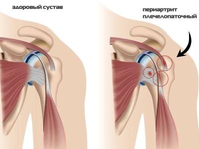 болит шея и правая рука плечо и правая лопатка болит