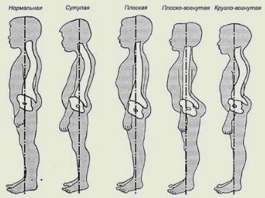 Упражнения для позвоночника с грудным сколиозом