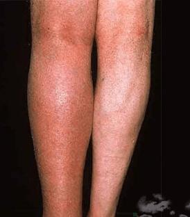 Как справиться с болью в суставах при климаксе