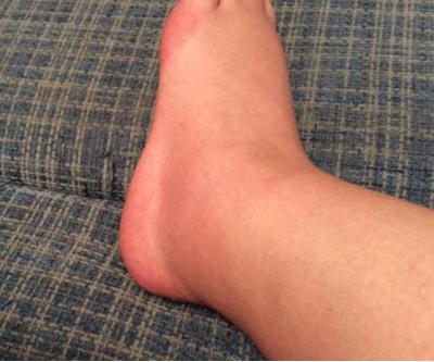 Что можно делать если горят подошвы ног