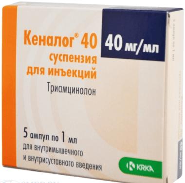 Обезболивающие препараты при болях в суставах уколы