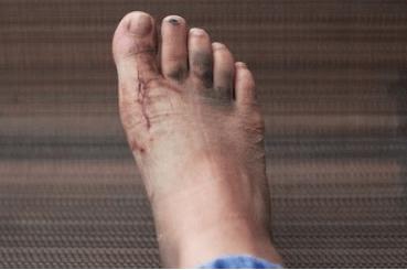Болят кости стопы ног почему thumbnail