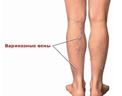 болят ноги особенно по утрам