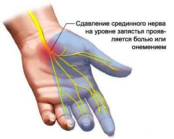 боль в руке при сжатии в кулак