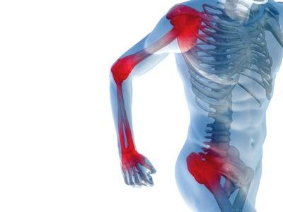 Изображение - Симптомы болезни суставов рук и ног bigCover
