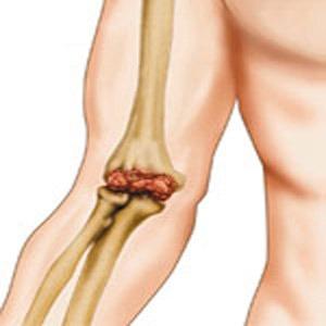 Боль в локтевом суставе причины и лечение