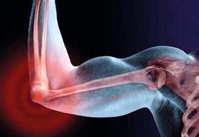 Чем лечить боль в локтевом суставе при сгибании и разгибании