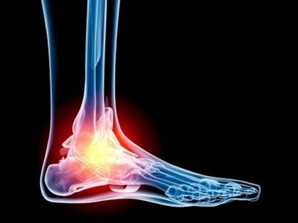Чем лечить суставы ног и рук в домашних условиях как вылечить Болят суставы