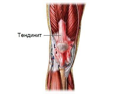 Почему утром болят мышцы ног thumbnail