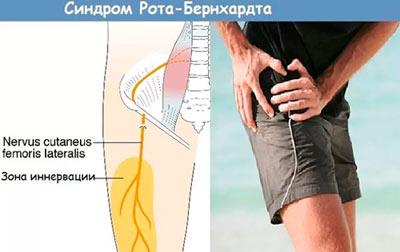синдром Рота Бернгардта