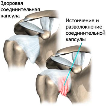 Боль в верхней части позвоночника между лопатками
