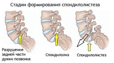 Боли спина в области лопаток