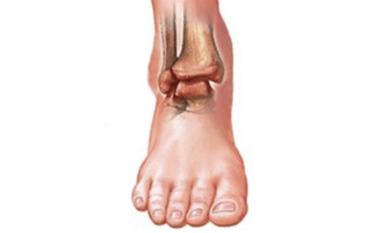 Ноги болят ноют почему