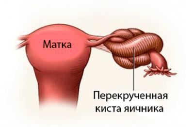 Болит правый бок отдается в ногу