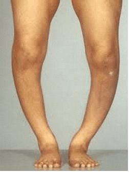 Почему болят кости ног после сна