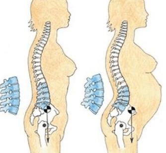 Жжение и боль на спине и в пояснице