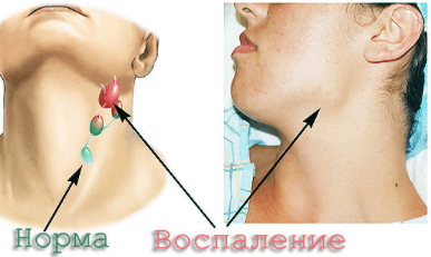 при глотании болит за ухом и шея
