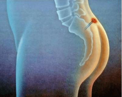 Шишка на спине на позвоночнике причины и способы лечения