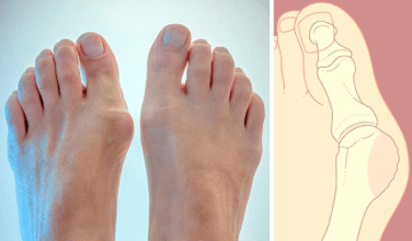 Лечение воспаленного сустава при артрите артрозе остеопорозе