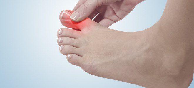 Болит большой палец ноги под ногтем причины