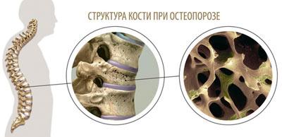 Остеопроз и кость