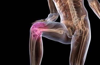 Изображение - Боль суставов ног народная медицина 1275918558